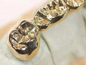 Zahngold Ankauf und Goldankauf zu hohen Preisen