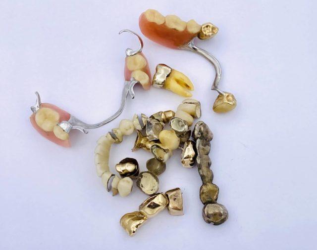 Goldpreis Zahngold
