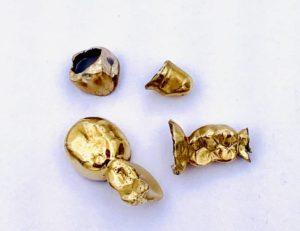 Preis für Zahngold
