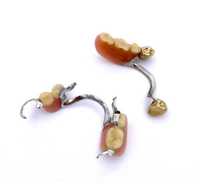 Zahngold herauslösen