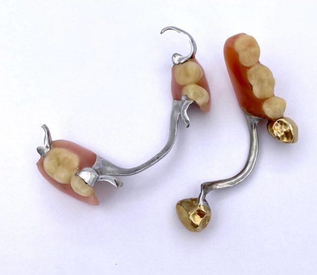 Zahngold verkaufen in der Nähe