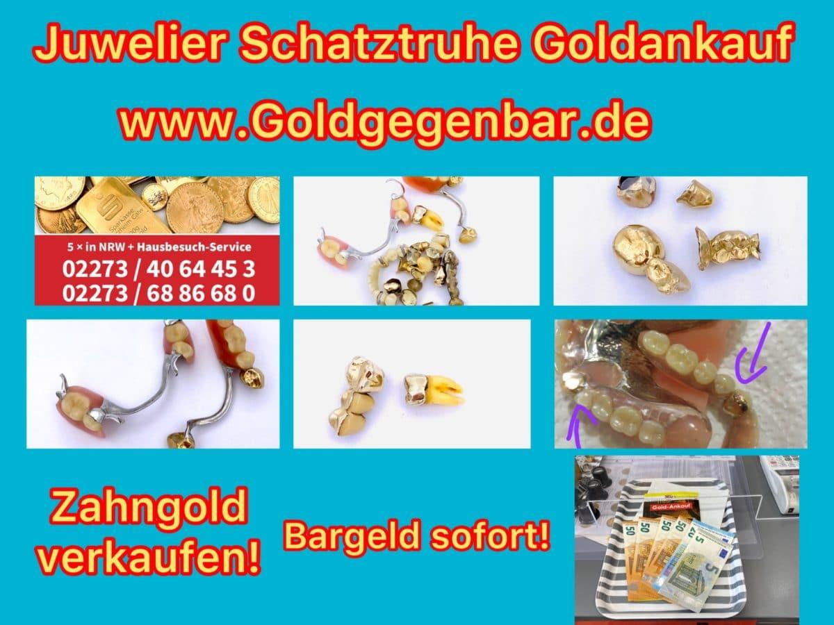 Zahngold verkaufen